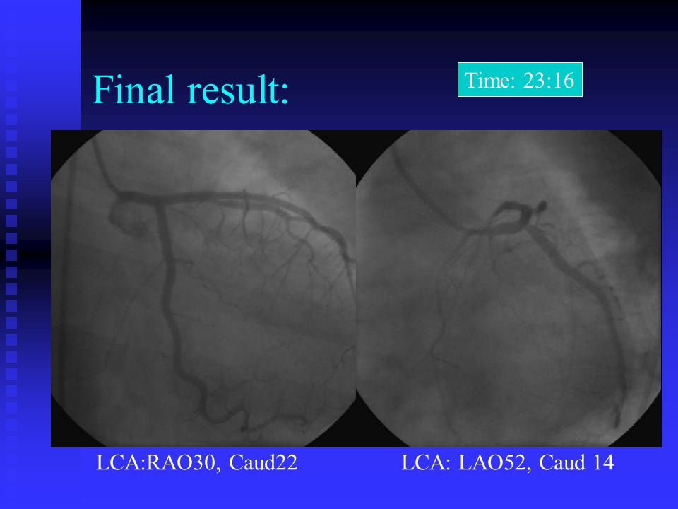 Final result: Time: 23:16 LCA:RAO30, Caud22 LCA: LAO52, Caud 14