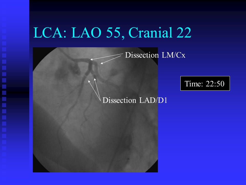 LCA: LAO 55, Cranial 22 Dissection LM/Cx Time: 22:50 Dissection LAD/D1