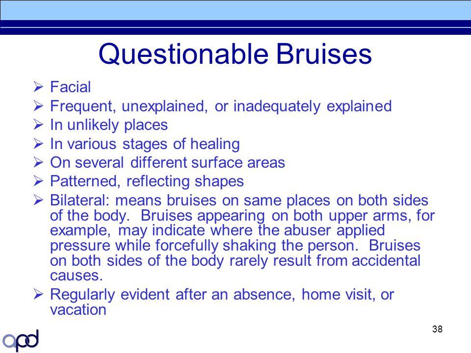 Questionable Bruises Facial
