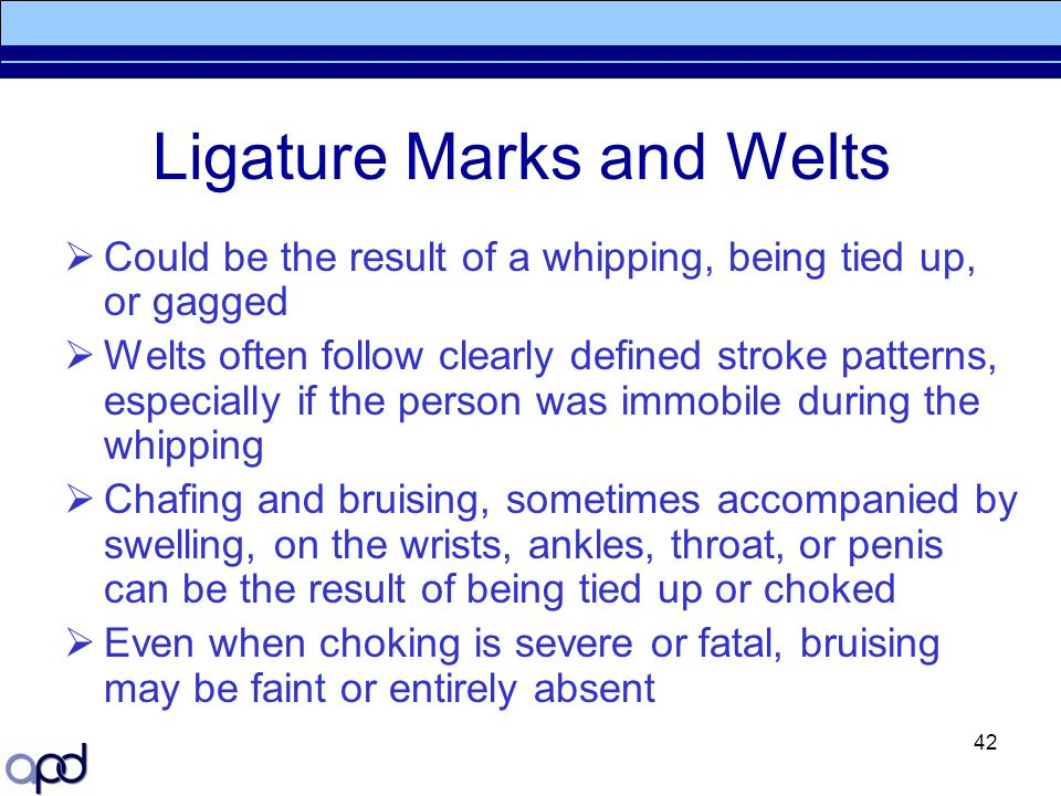 Ligature Marks and Welts
