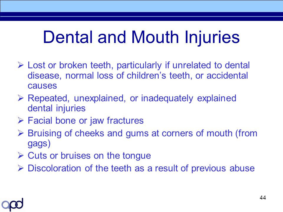 Dental and Mouth Injuries