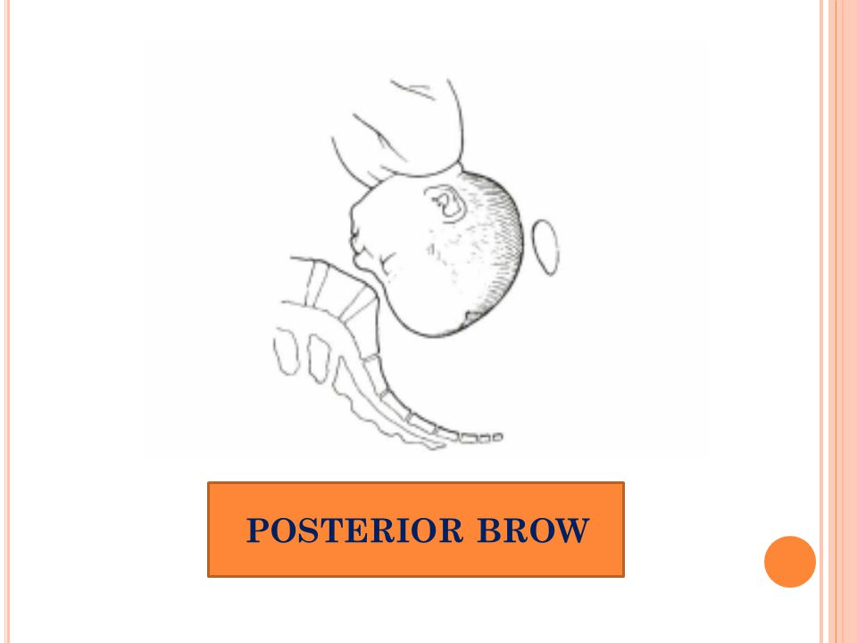 POSTERIOR BROW