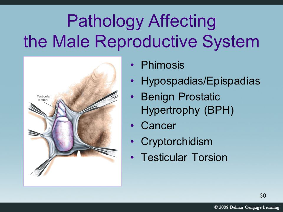 Pathology Affecting the Male Reproductive System