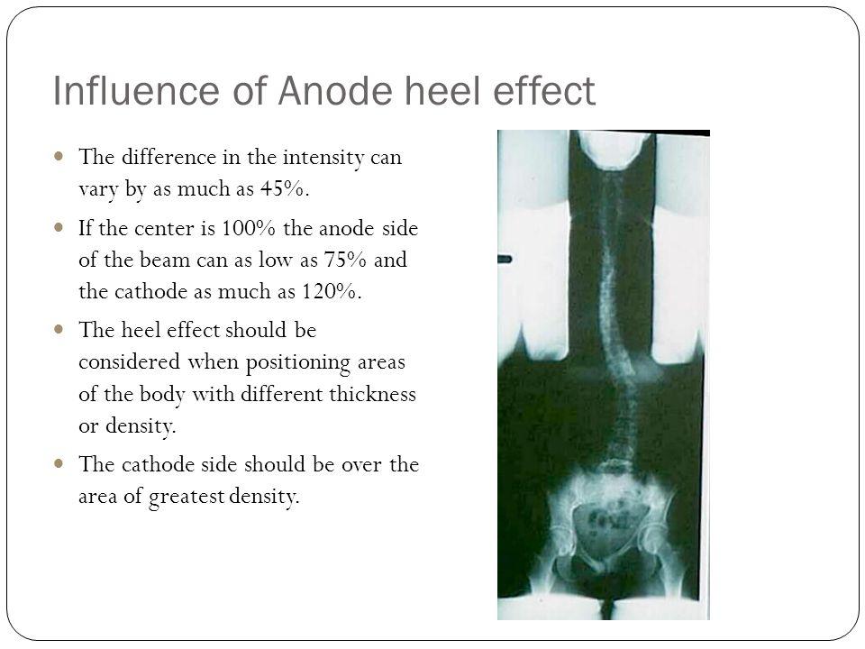 Influence of Anode heel effect