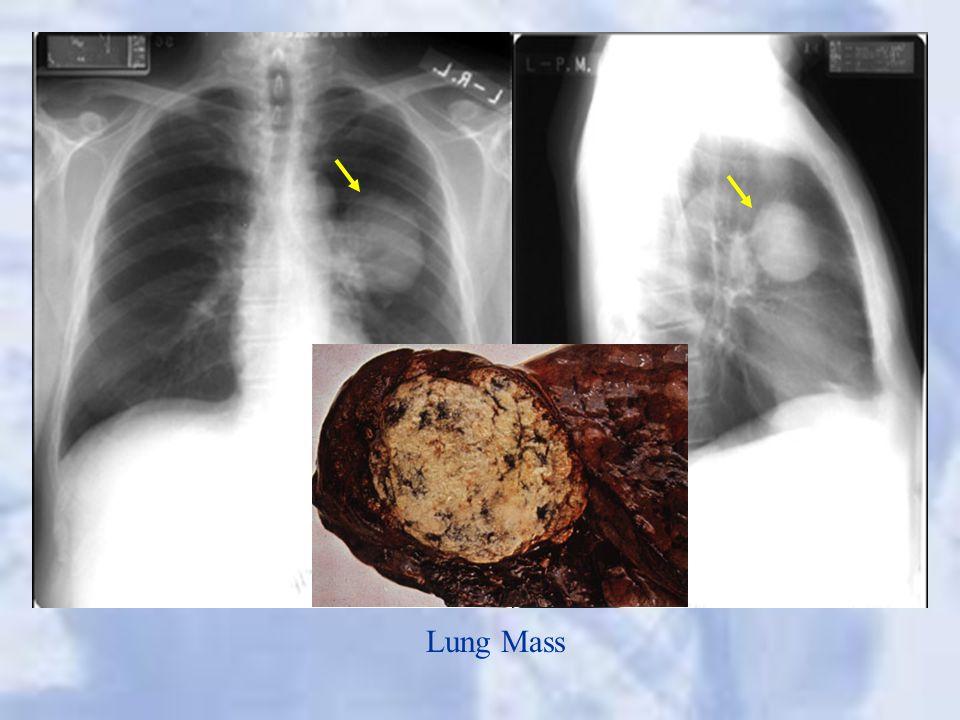 Lung Mass