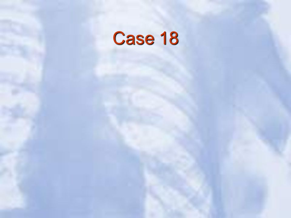 Case 18