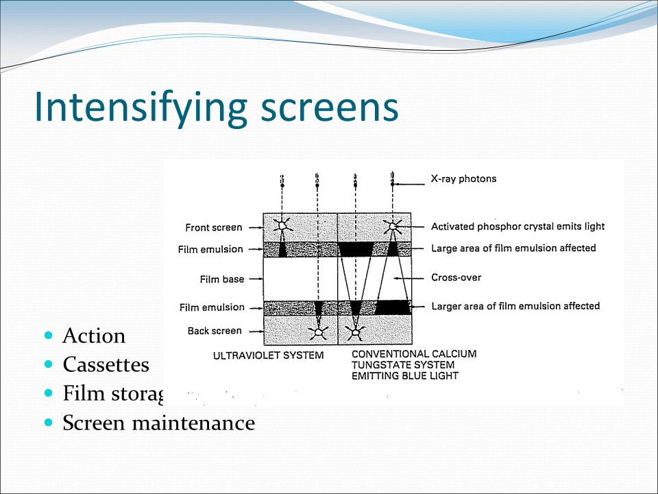 Intensifying screens Action Cassettes Film storage Screen maintenance