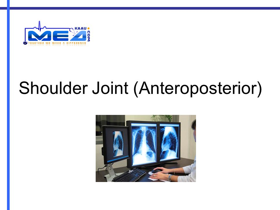 Shoulder Joint (Anteroposterior)