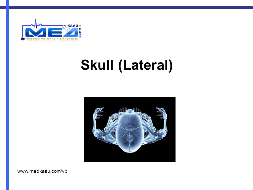 Skull (Lateral) www.medkaau.com/vb