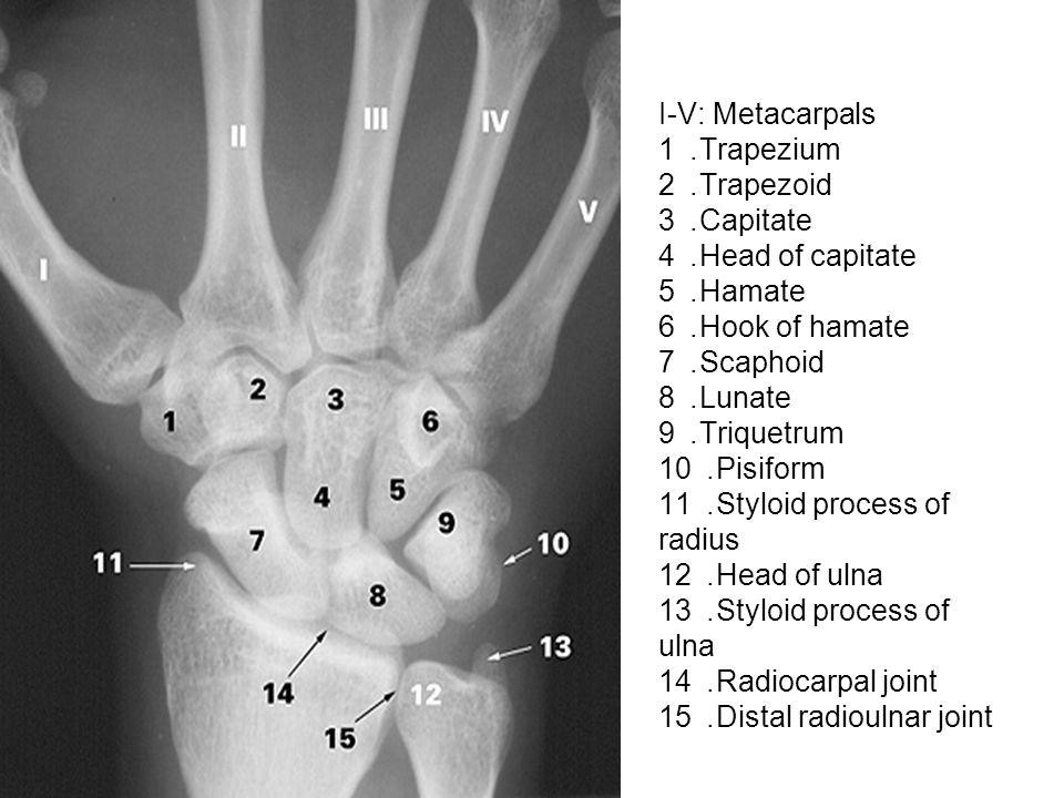 I-V: Metacarpals 1. Trapezium 2. Trapezoid 3. Capitate 4