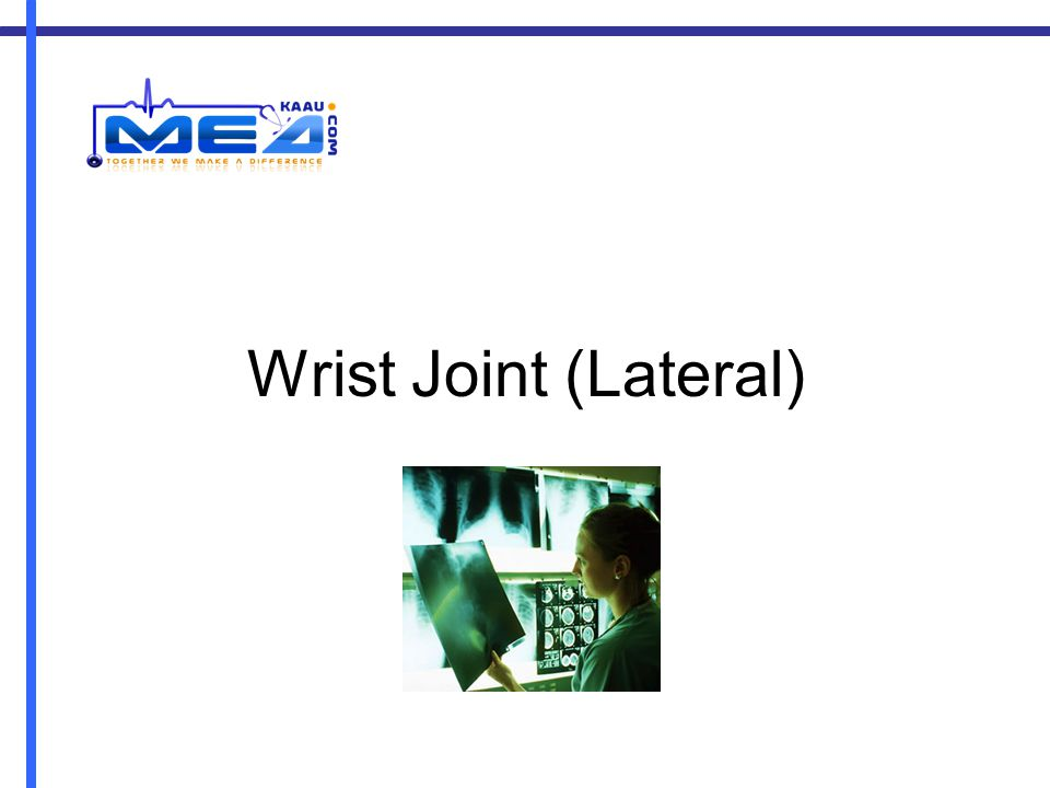 Wrist Joint (Lateral)