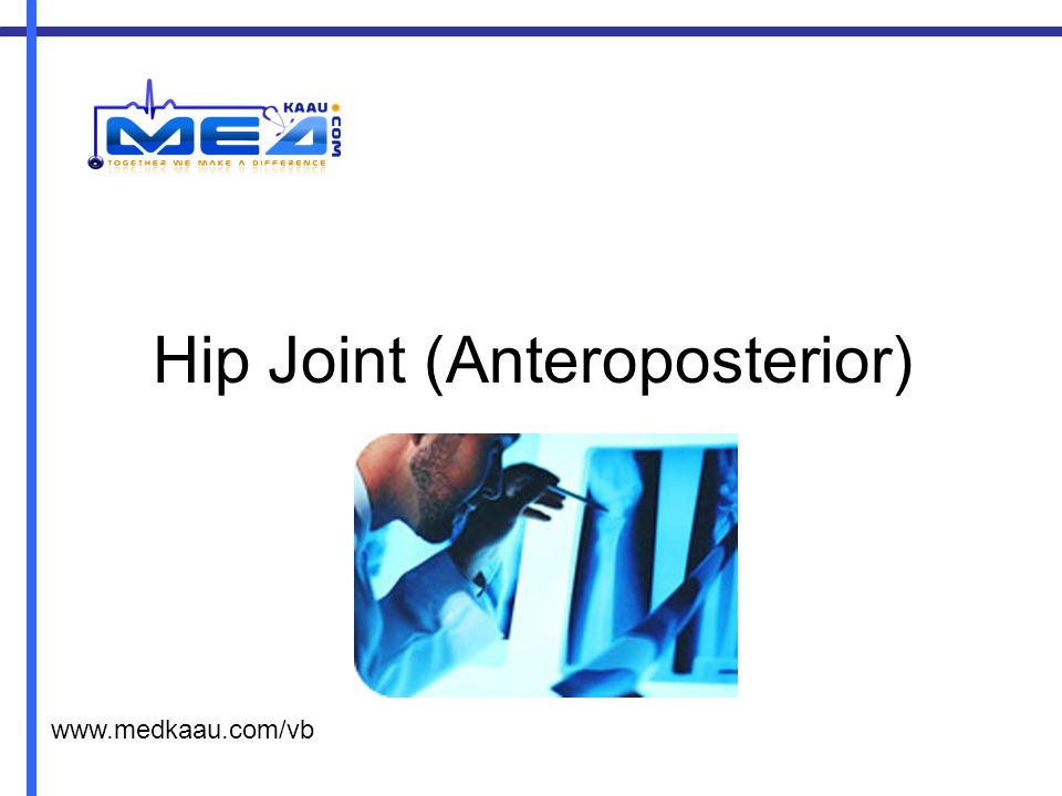 Hip Joint (Anteroposterior)