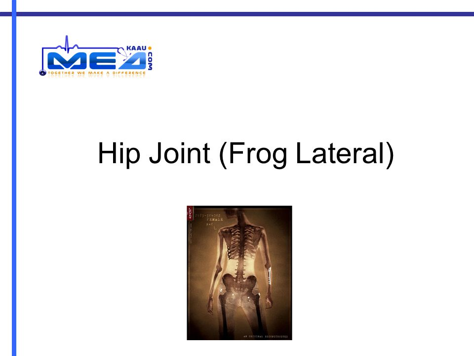 Hip Joint (Frog Lateral)