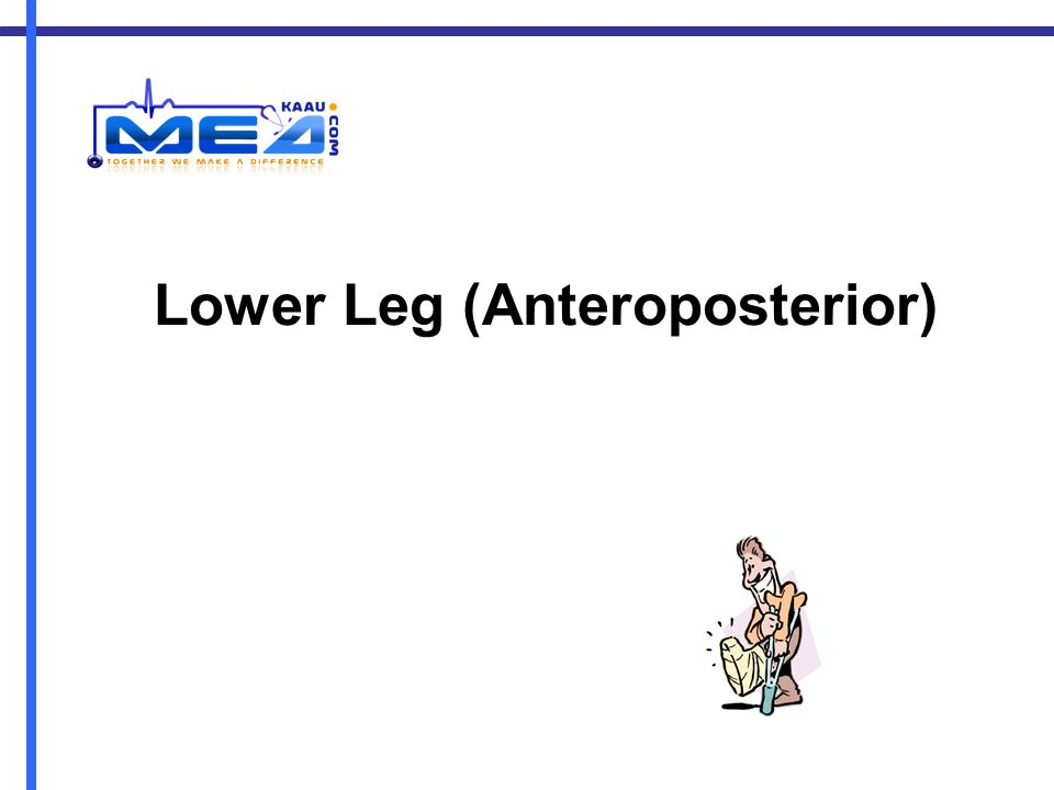 Lower Leg (Anteroposterior)
