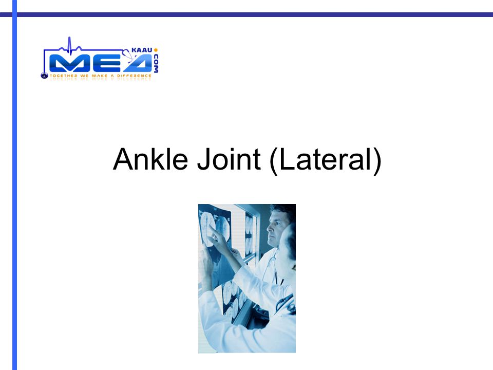 Ankle Joint (Lateral)