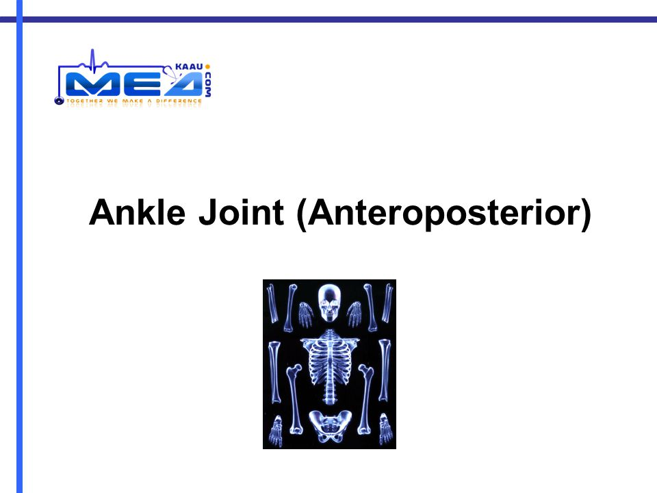 Ankle Joint (Anteroposterior)