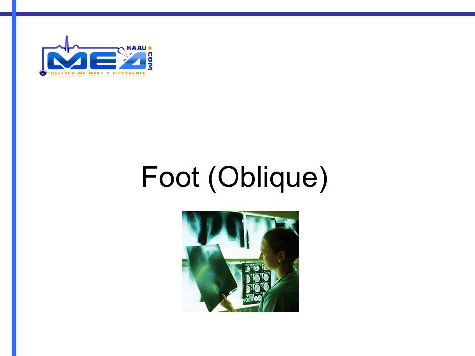 Foot (Oblique)