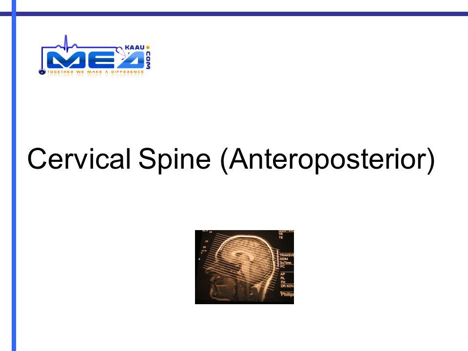 Cervical Spine (Anteroposterior)