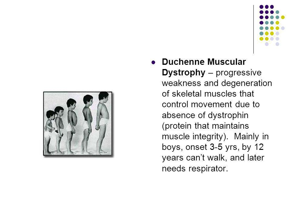 Duchenne Muscular Dystrophy – progressive weakness and degeneration of skeletal muscles that control movement due to absence of dystrophin (protein that maintains muscle integrity).