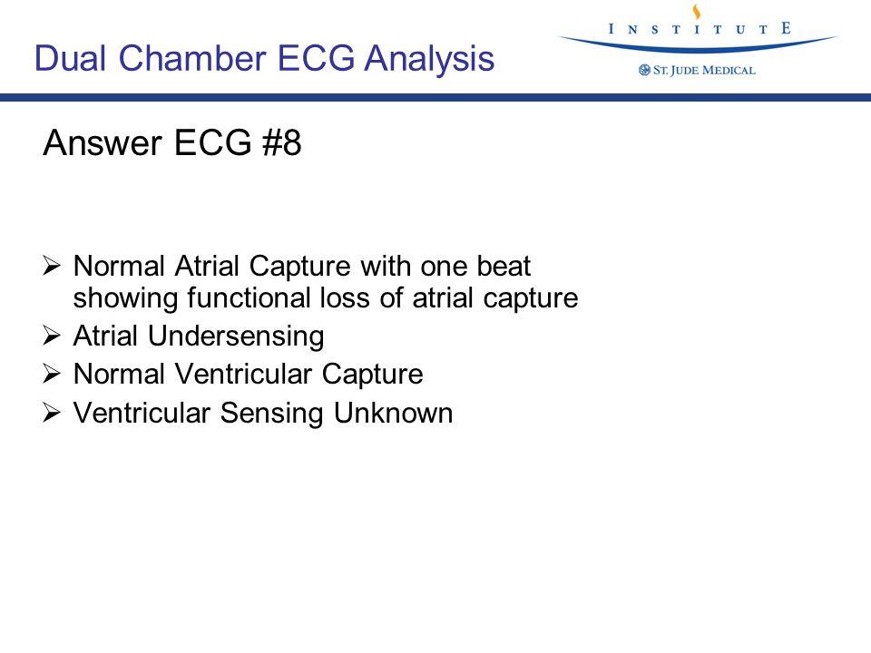 Dual Chamber ECG Analysis