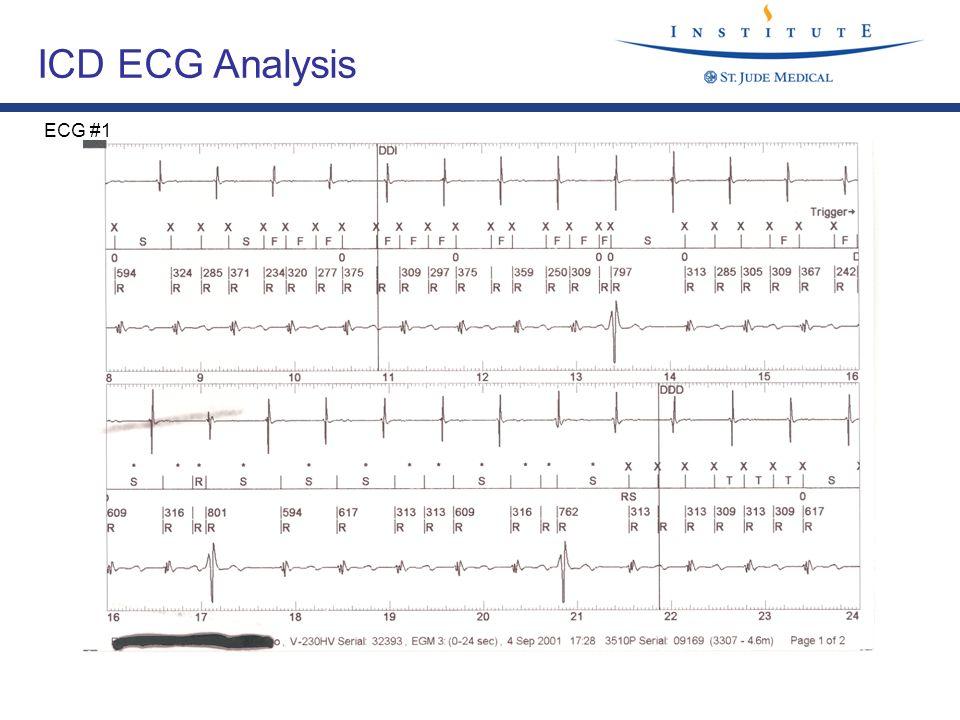 ICD ECG Analysis ECG #1
