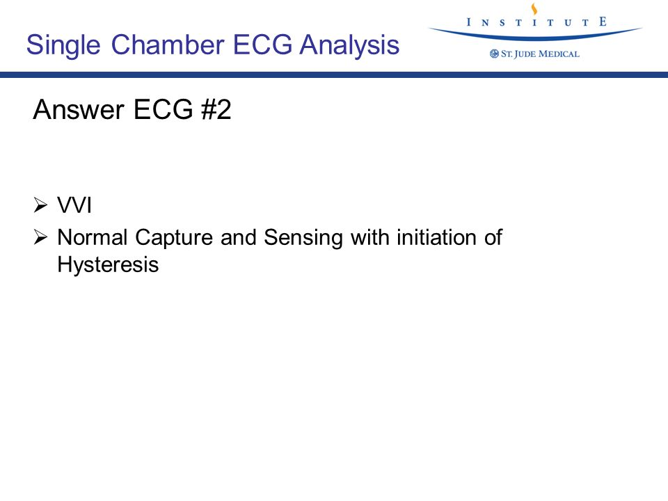 Single Chamber ECG Analysis
