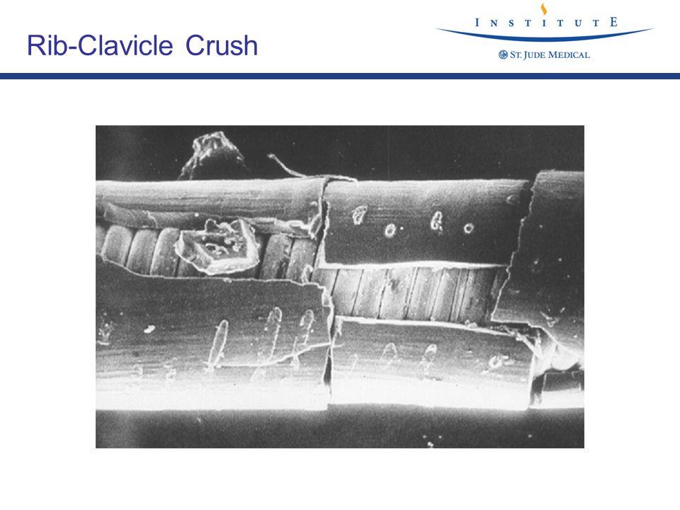 Rib-Clavicle Crush Rib-Clavicle Crush - Scanning EM of Internal insulation.