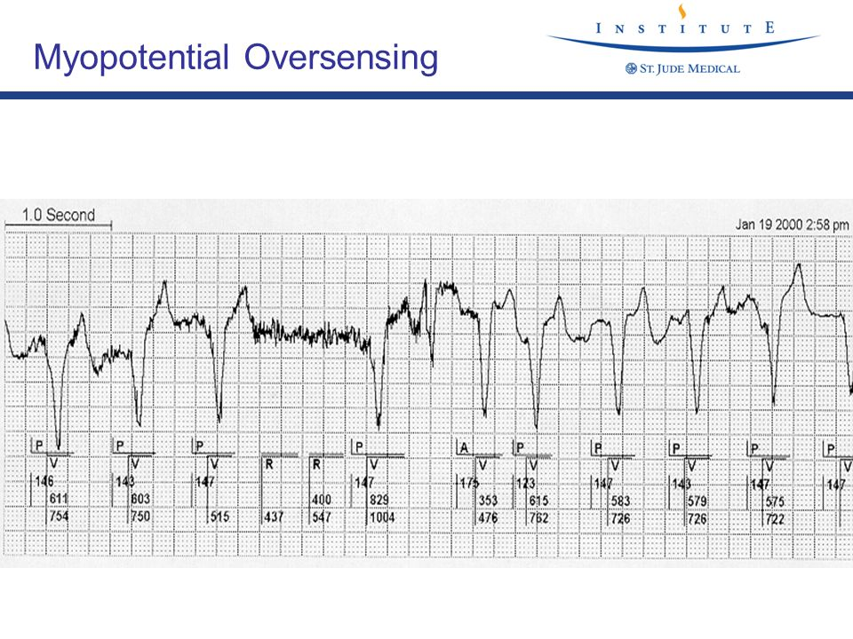 Myopotential Oversensing