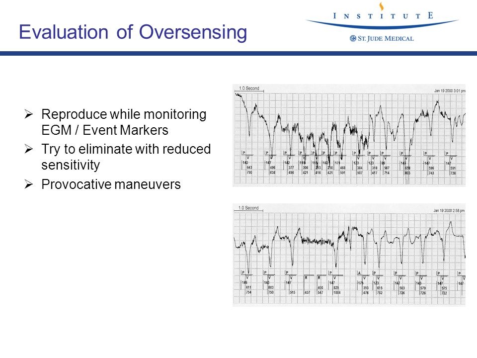 Evaluation of Oversensing