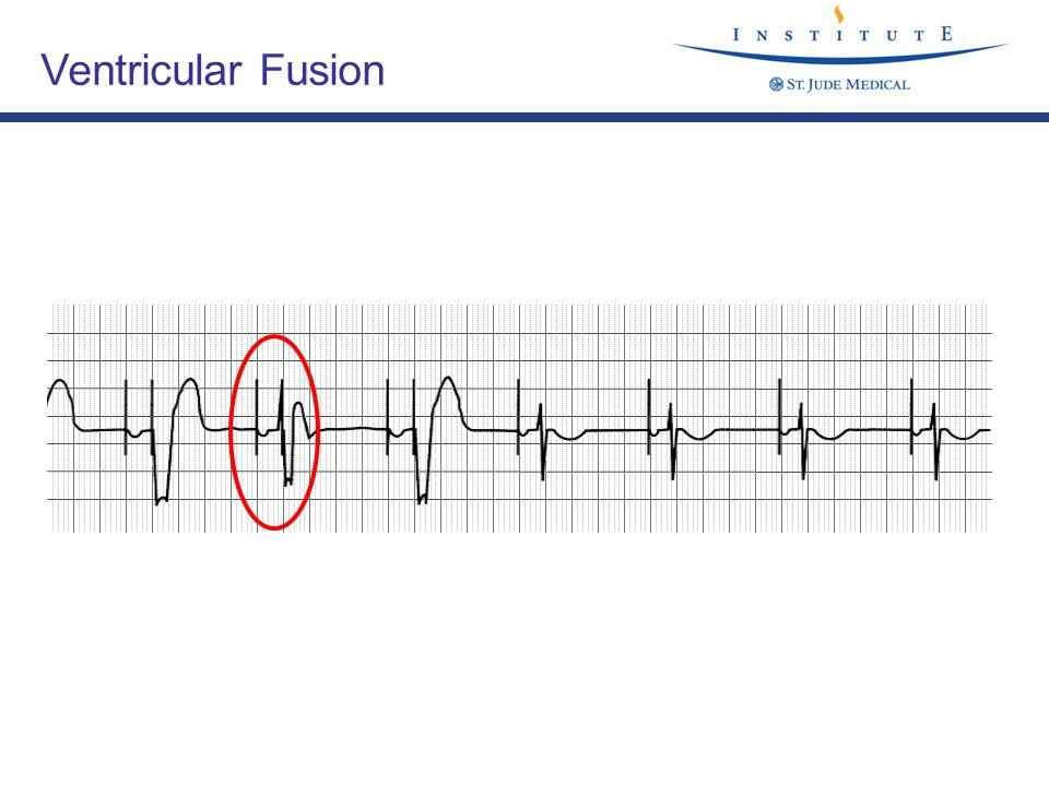 Ventricular Fusion