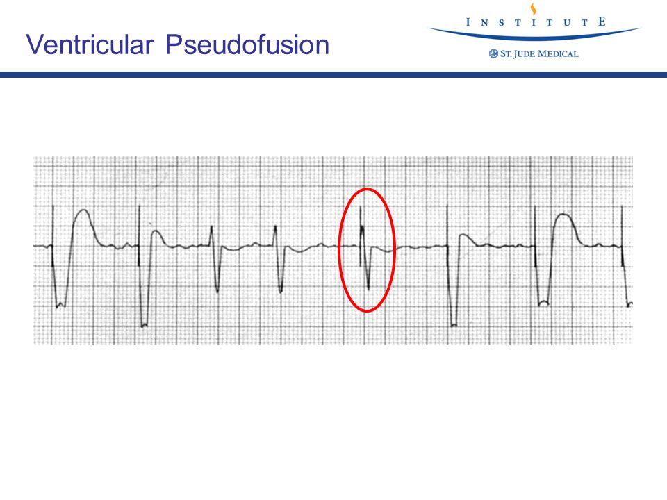 Ventricular Pseudofusion