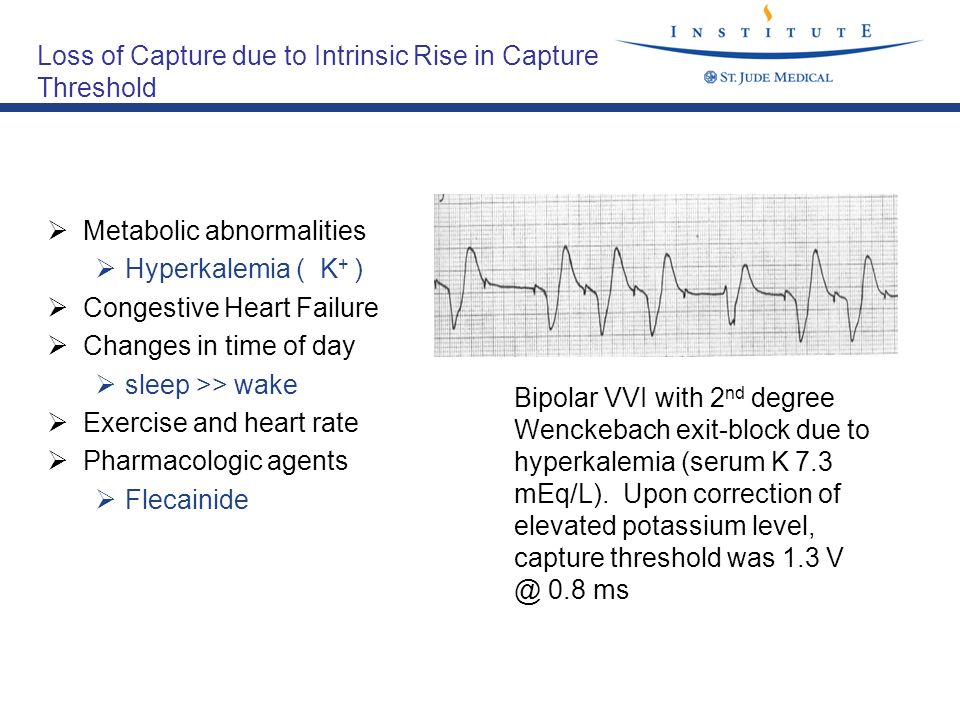 Loss of Capture due to Intrinsic Rise in Capture Threshold