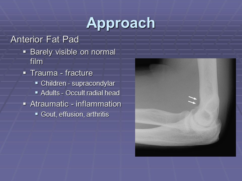 Approach Anterior Fat Pad Barely visible on normal film