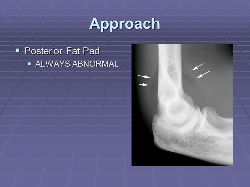 Approach Posterior Fat Pad ALWAYS ABNORMAL