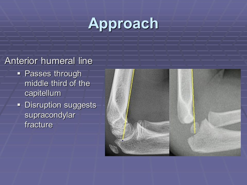 Approach Anterior humeral line