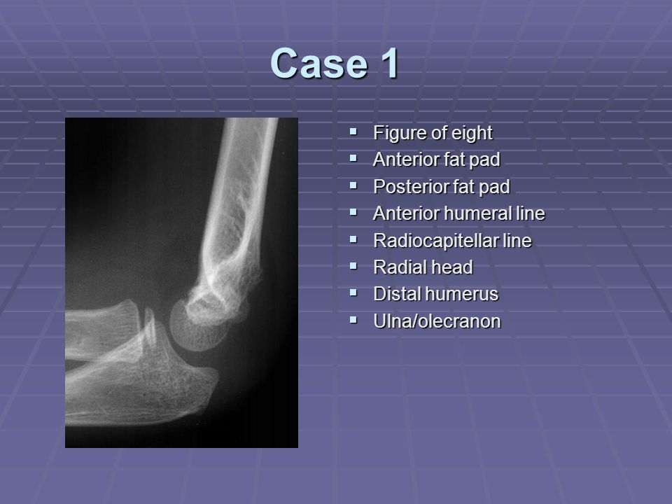 Case 1 Figure of eight Anterior fat pad Posterior fat pad