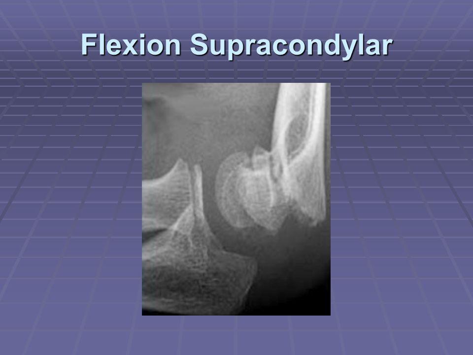 Flexion Supracondylar