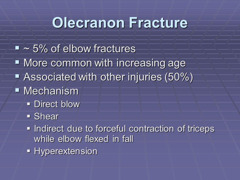 Olecranon Fracture ~ 5% of elbow fractures