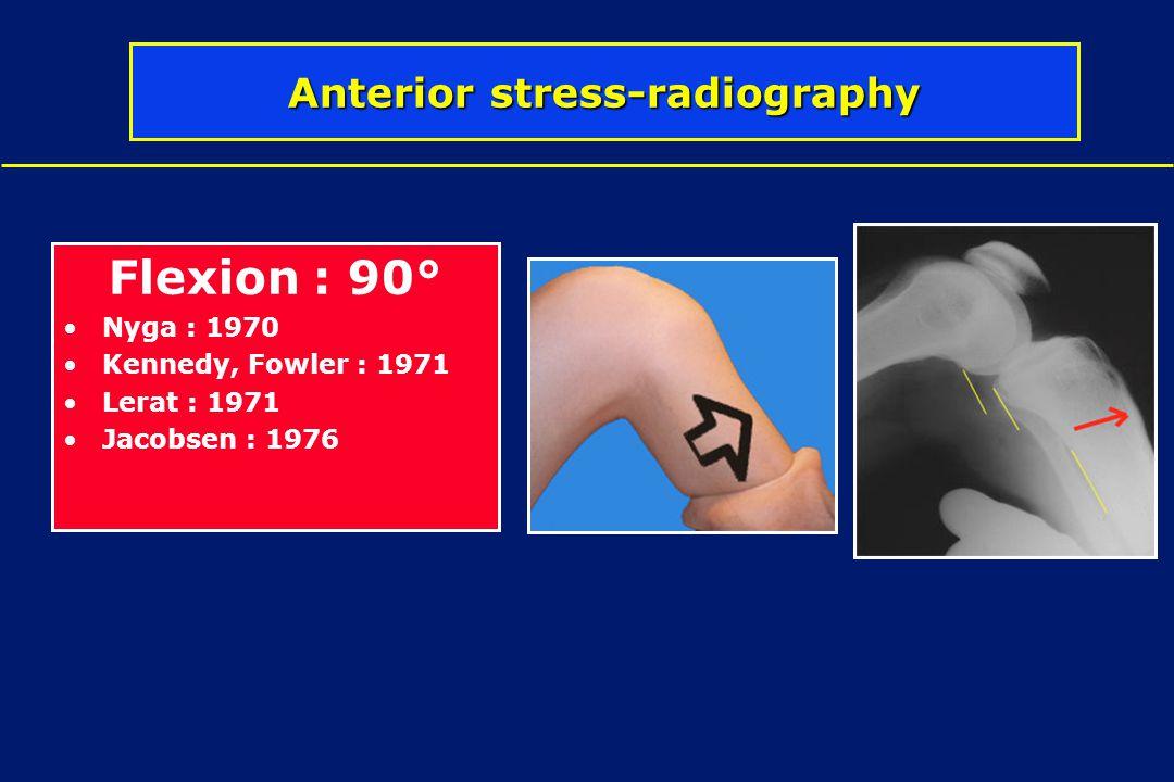 Anterior stress-radiography