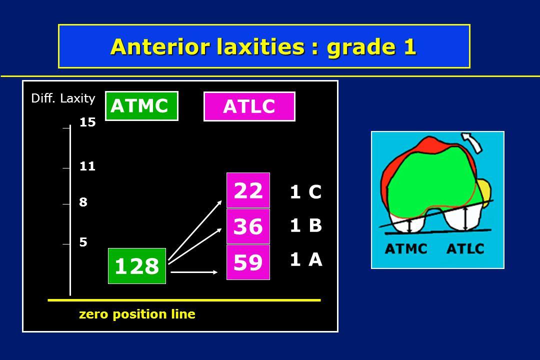 Anterior laxities : grade 1