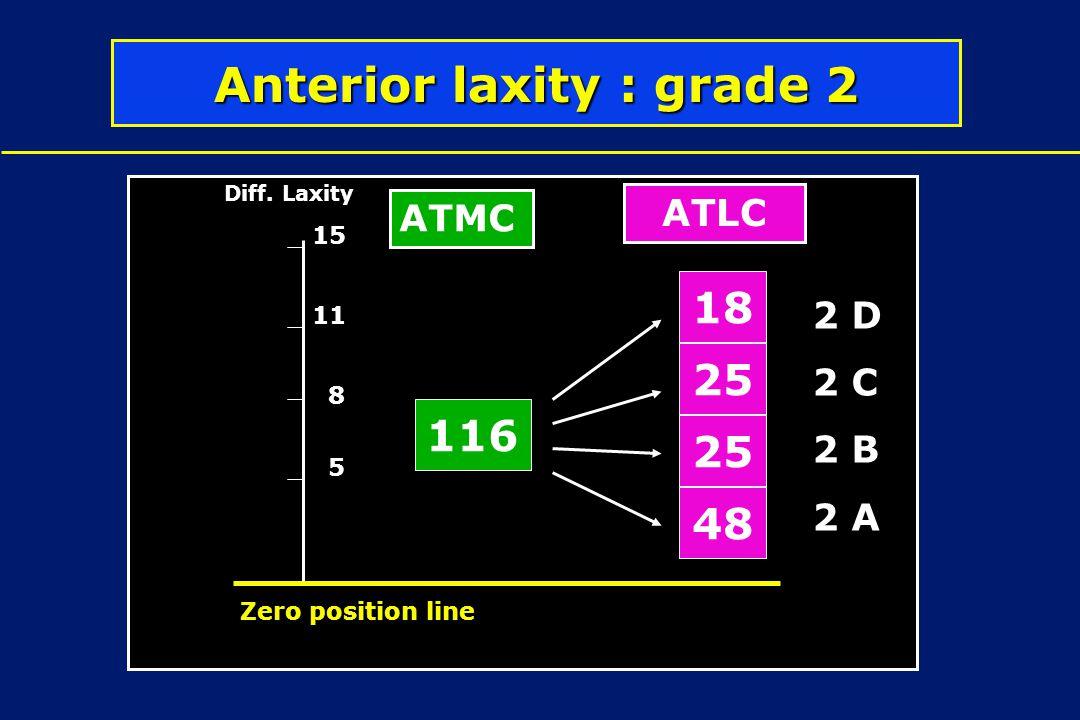Anterior laxity : grade 2