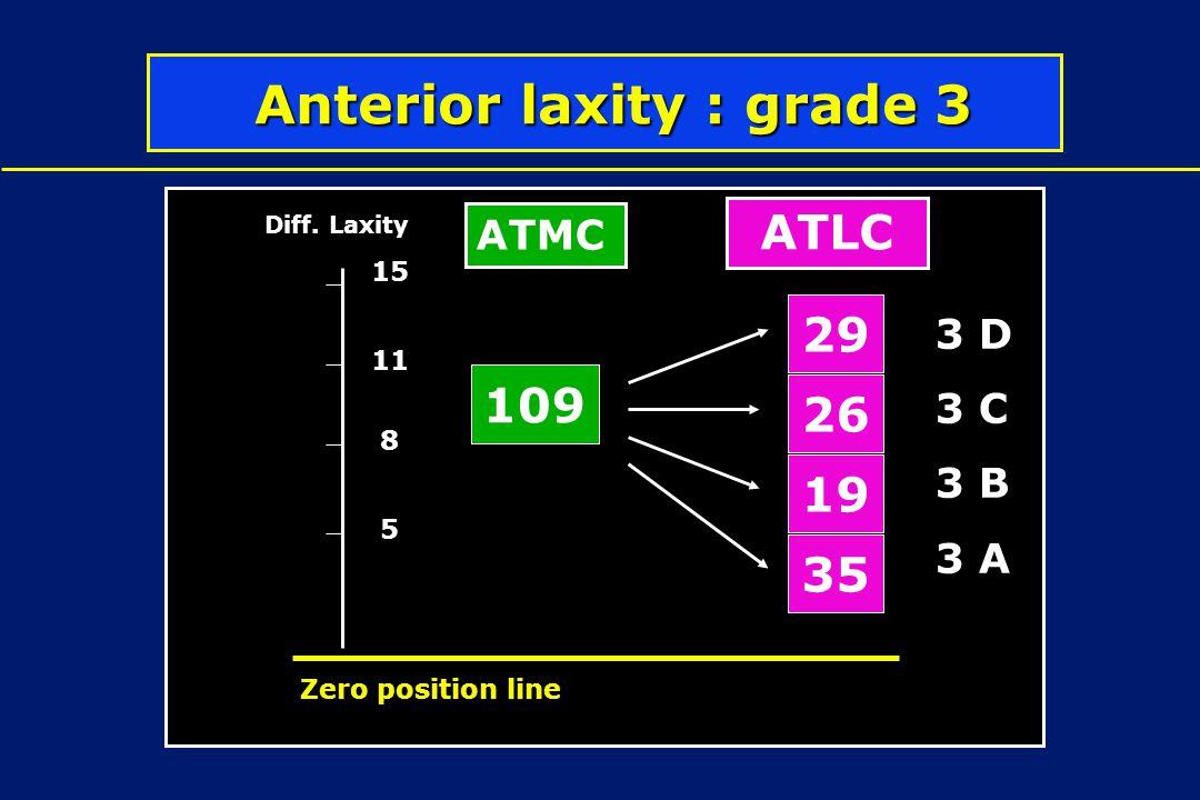 Anterior laxity : grade 3