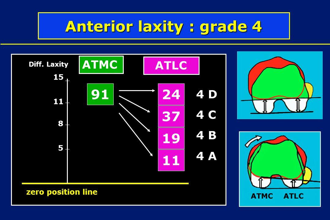Anterior laxity : grade 4