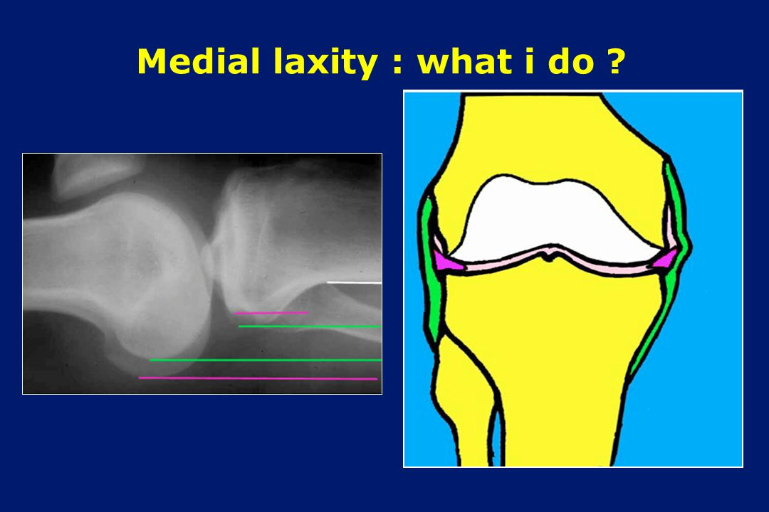Medial laxity : what i do