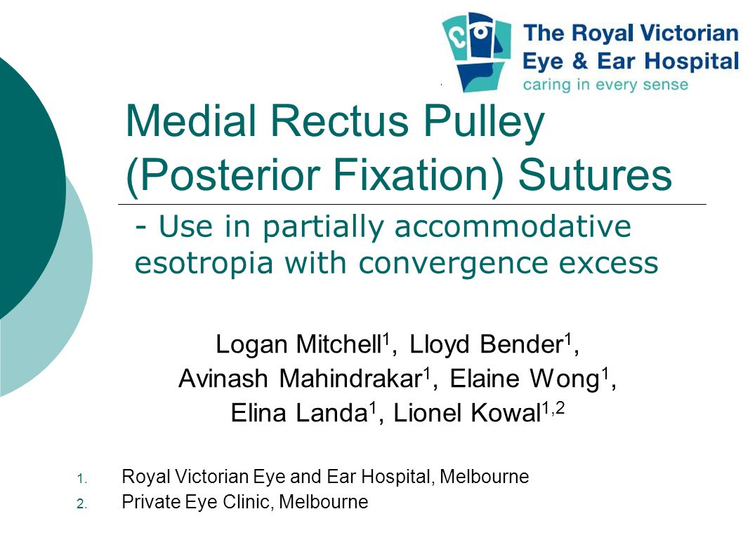 Medial Rectus Pulley (Posterior Fixation) Sutures