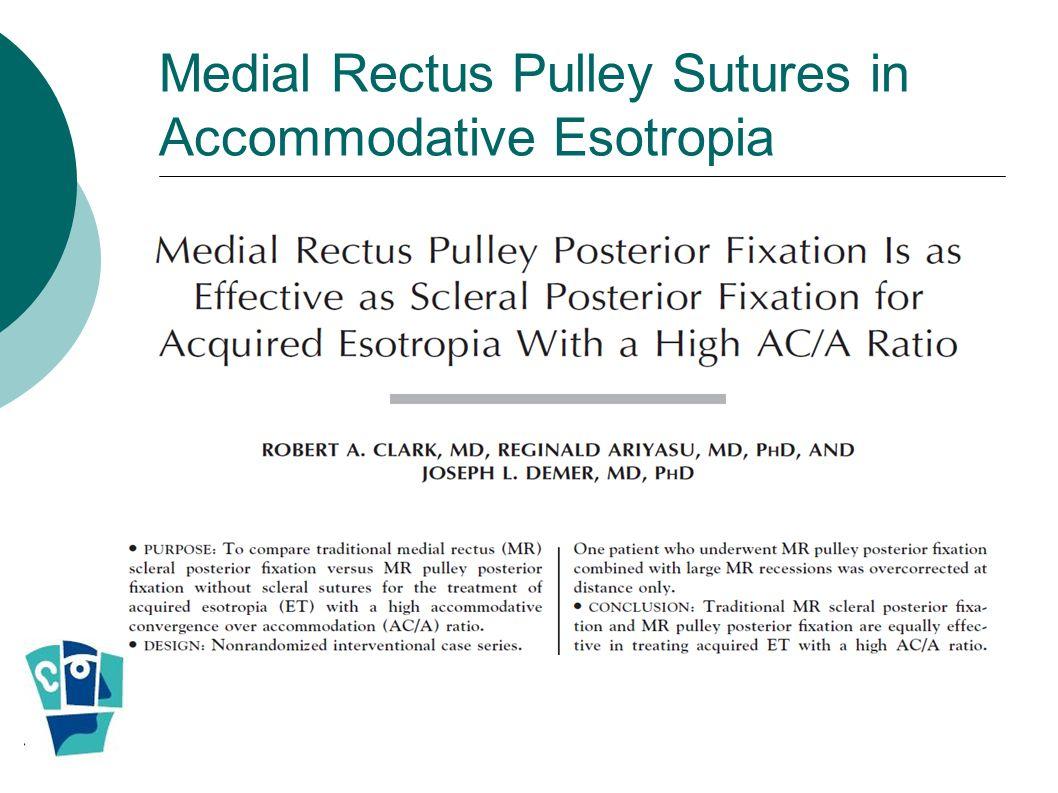 Medial Rectus Pulley Sutures in Accommodative Esotropia
