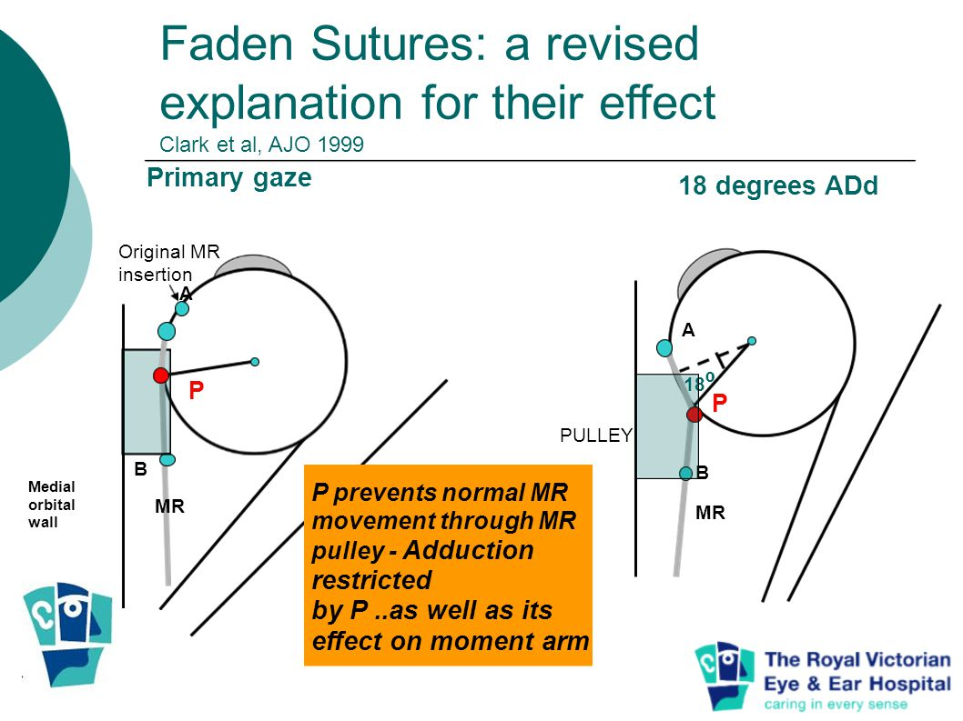 Faden Sutures: a revised explanation for their effect