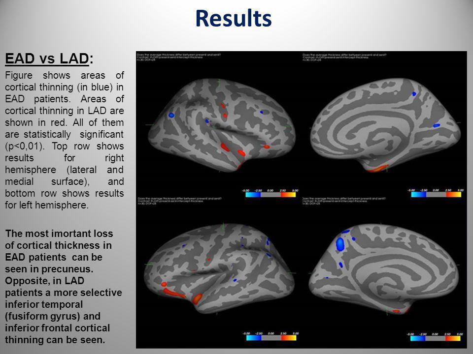 Results EAD vs LAD:
