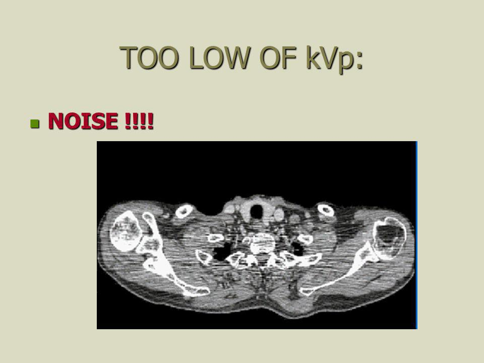 TOO LOW OF kVp: NOISE !!!!