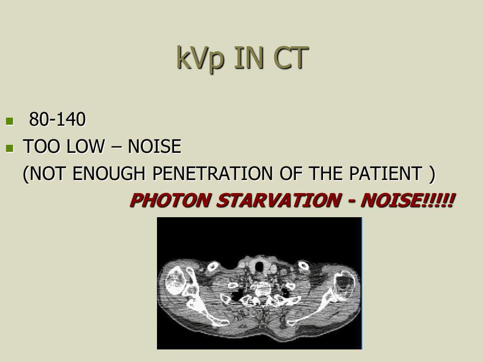 kVp IN CT 80-140 TOO LOW – NOISE